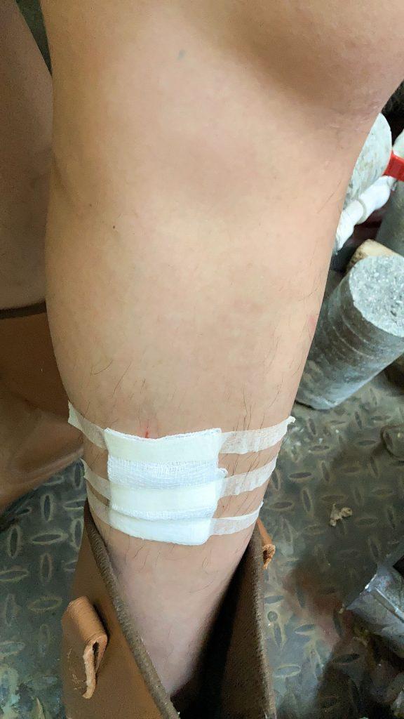 在受过的外伤来看算大型的了,现在那个疤都还没消散